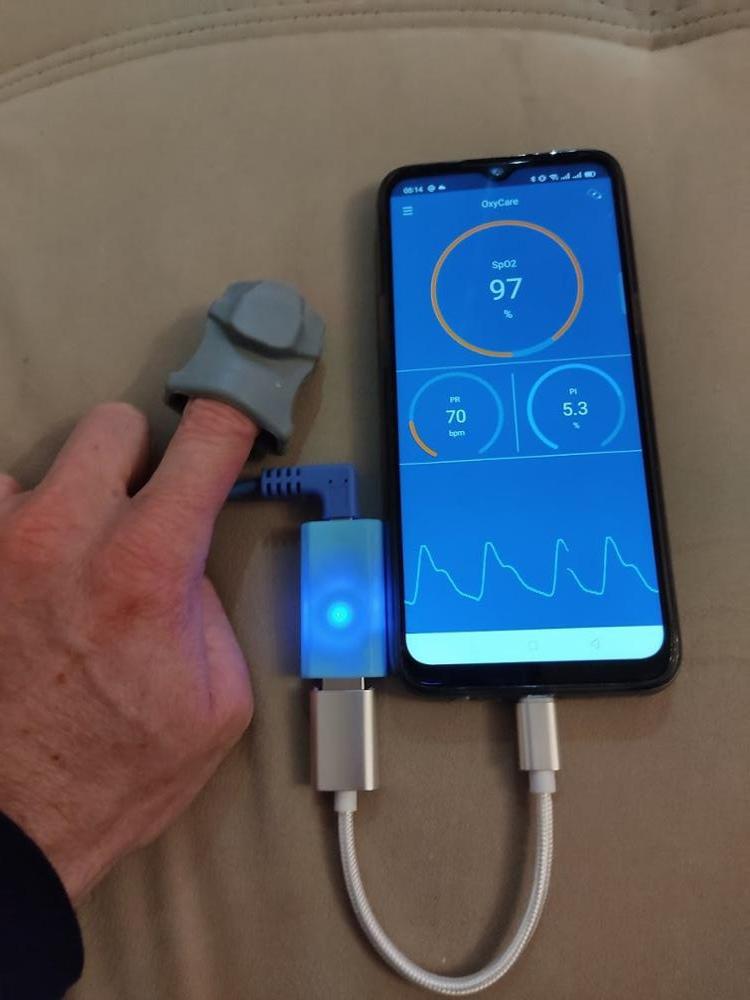 Пульсоксиметр который передает ваши показатели на смартфон